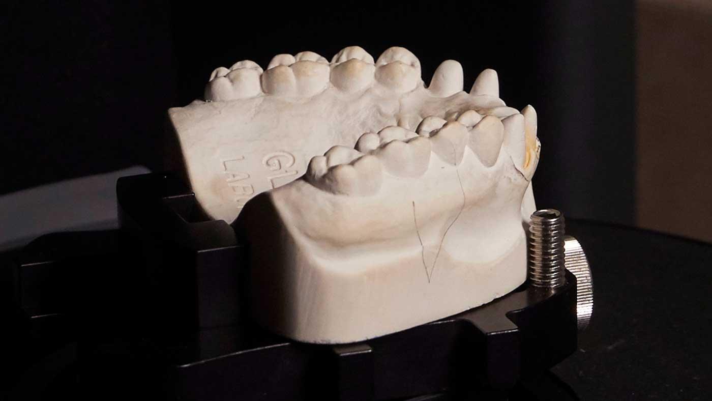 Teeth molding